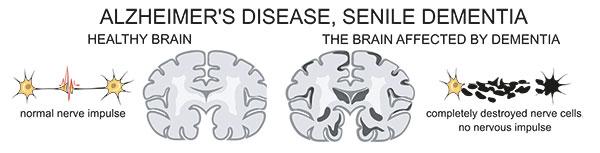 Normale vs Alzheimer hersenen