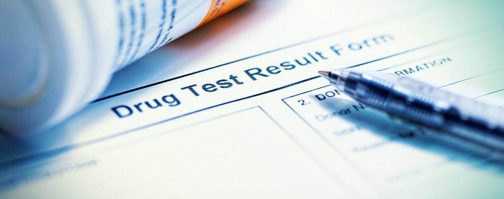 Slagen Voor Een Urine Drugstest