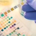 Wat Je Moet Weten Voordat Je Een Drugstest Moet Ondergaan